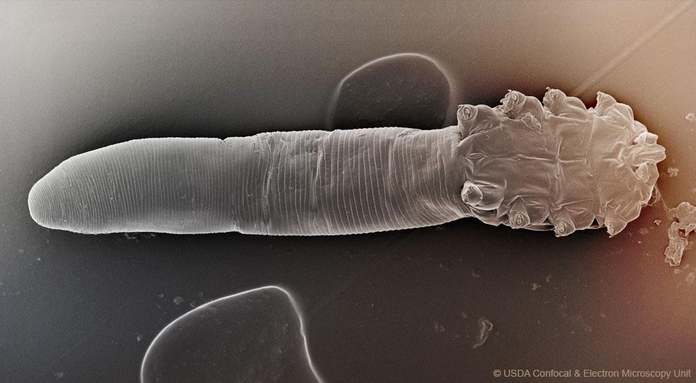Meet Your Mites